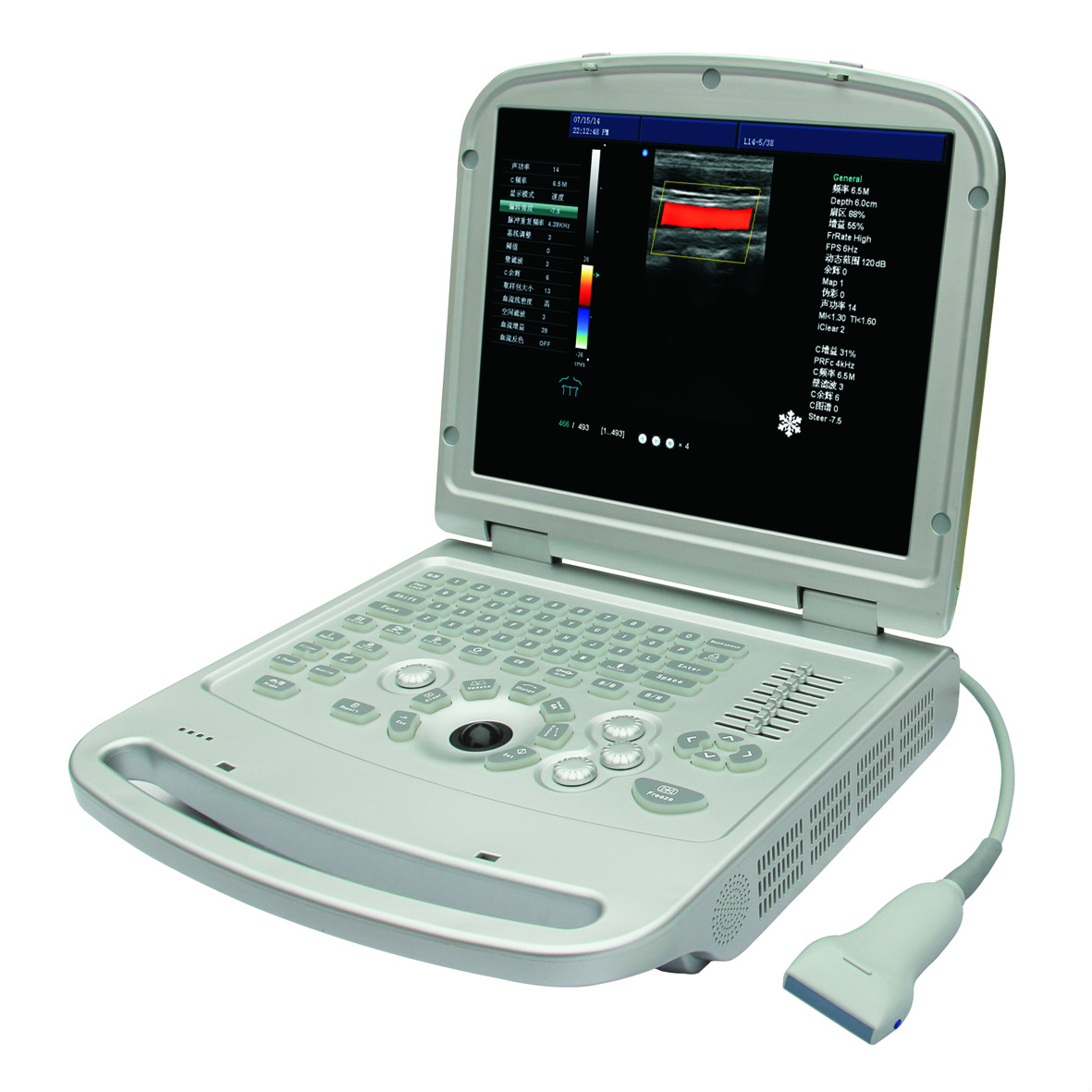 Full digital portable Color Doppler Ultrasound scanner