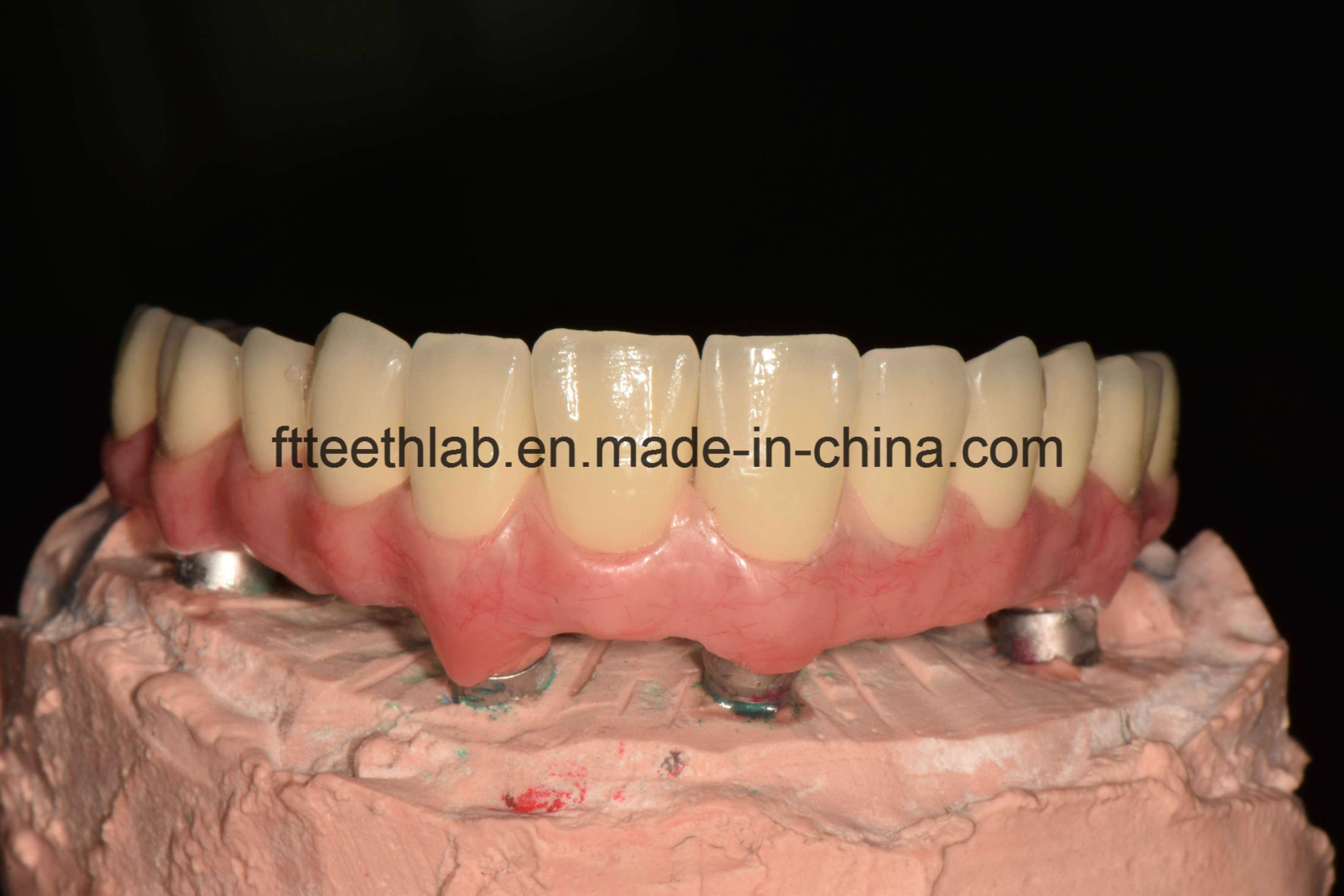 Malo full arch implant bridge New product!