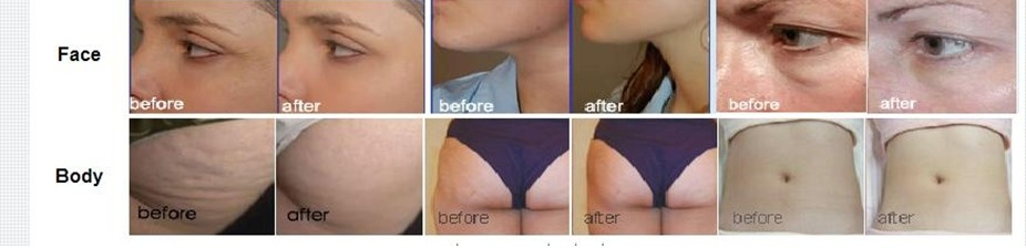 RF Before-After photoes