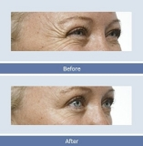 Treatment Effect Figures for Wrinkle Removal (E-light/RF machines)
