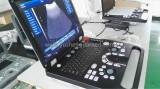 Full digital laptop ultrasound scanner syste on test line in factory