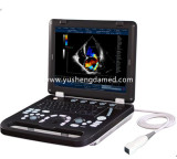 color doppler digital laptop ultrasound diagnostic equipment