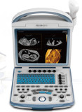 Digital Portable Ultrasound System PC Based Ysd4600