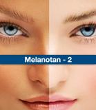 Melanotan 2 Dosage, Mixing, Loading ,Injecting