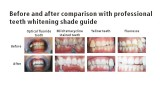 Teeth Whitening Series
