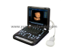 Digital Laptop Diagnosis Ultrasound machine