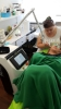 customers do treatment with our CO2 fractional scar removal laser