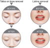 Treatment Effect Figures for Lipline and Tattoos On Brow Removal (Laser Tattoo Removal Machines)