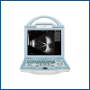 Full Digital Ophthalmic A/B Ultrasound Machineysd8100