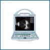 Full Digital Ophthalmic A/B Ultrasound Machineysd8100