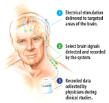 Medtronic's Latest Iteration of Its Activa Neurostimulator Is Not Just a Therapy Device
