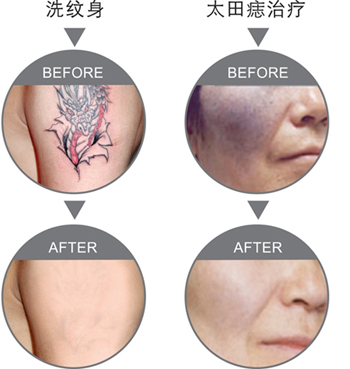 Treatment Effect Figures for tattoo and birth mark removal before and after